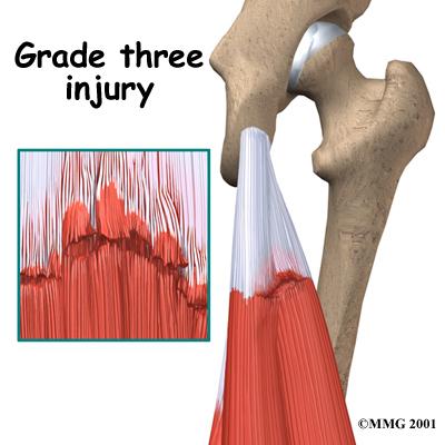 hamstring diagnosis03  Йога и травмы: задняя поверхность бедра: